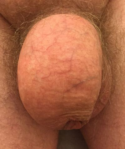 penis_front
