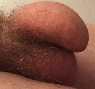 penis_side